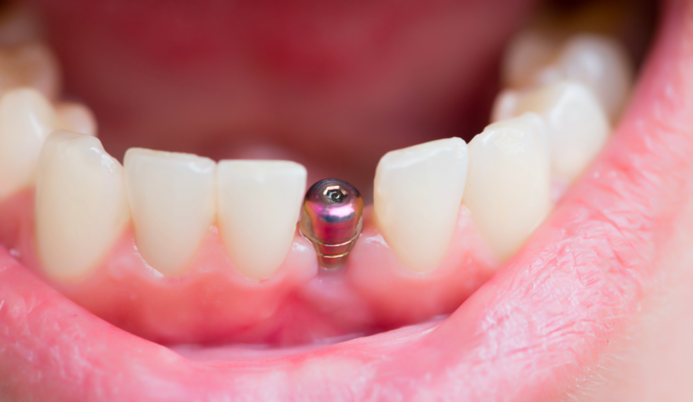 Dental Implants Nederland