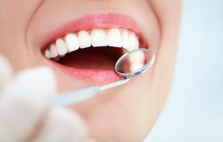 dental fillings in nederland, tx
