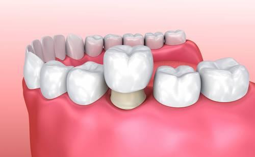 dental implant in nederland tx