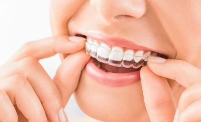 invisalign clear braces | nederland tx