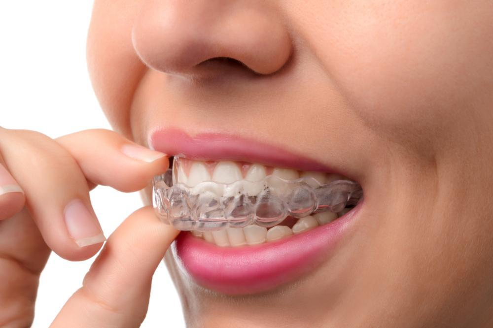 invisalign in nederland tx | woman removing clear retainer