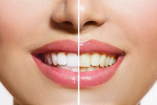 Teeth Whitening Nederland TX | Dentist Mid County TX