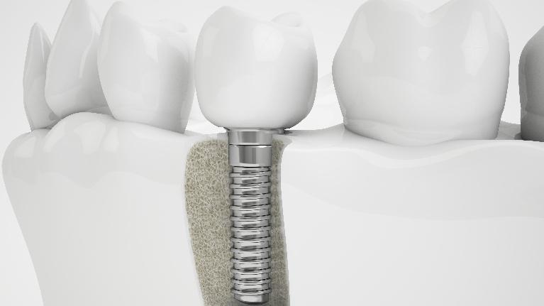 Dental Implants Southeast TX | Dental Implants Nederland TX