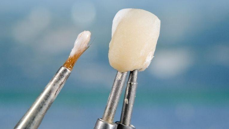 Dental Crowns | Nederland Family Dental | Nederland, TX