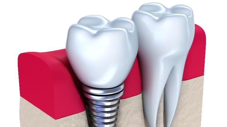 dental implants nederland tx