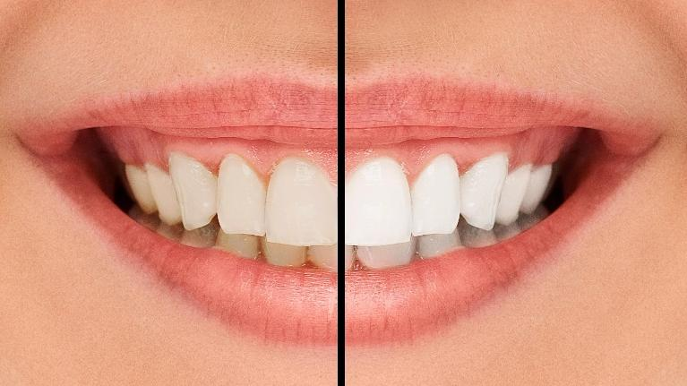 teeth whitening southeast tx