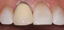 Dental-crown-Before-Image