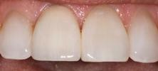 Dental-crown-After-Image