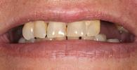Smile-Rehabilitation-Before-Image