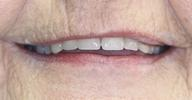 Full-Dentures-Before-Image