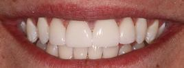Veneers-After-Image