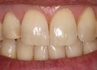 stained and damaged tooth before placing veneer in nederland tx