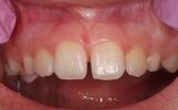 Frenectomy-After-Image